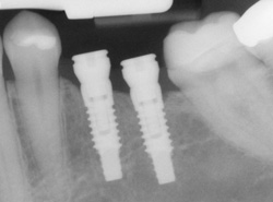implants process