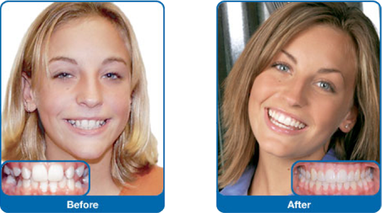 Remarkable, before and after adult braces