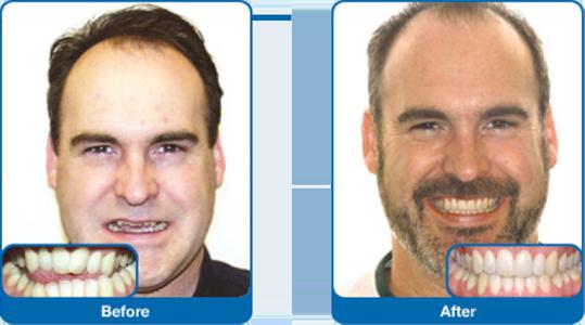 damon smile before and after lakewood wa drangsholt orthodontics